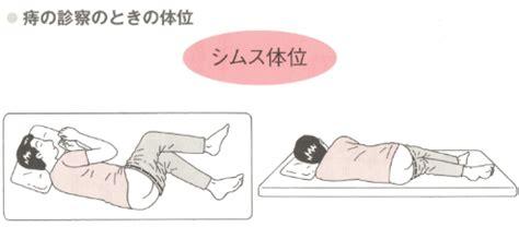hemorrhoid examine picture 1