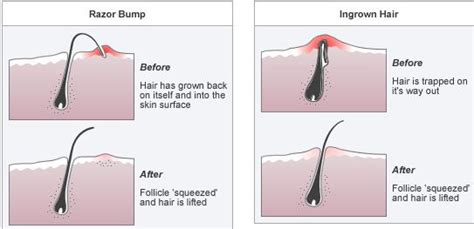 soothe itchy pubic hair picture 3