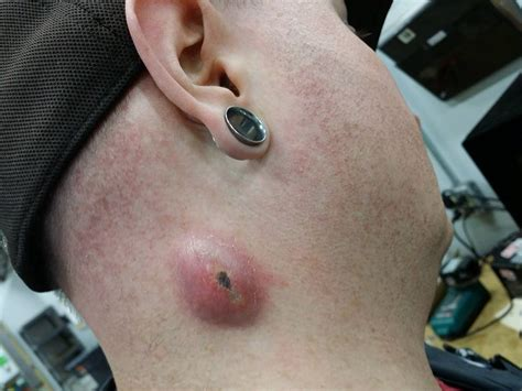 pictures of ingrown hair ps picture 5