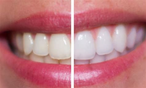 will hair peroxide whiten dentures picture 18