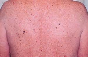 skin red mole picture 17