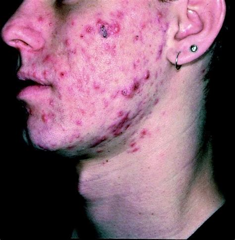 nodnuel cystic acne medical definition picture 2