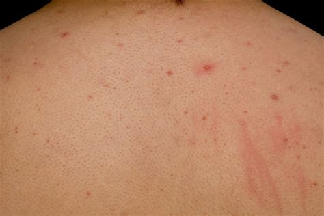 does cause acne picture 13