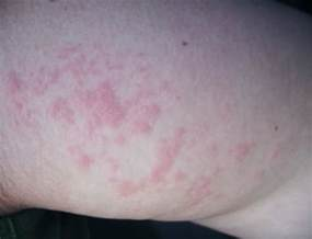pictures skin rashes picture 6