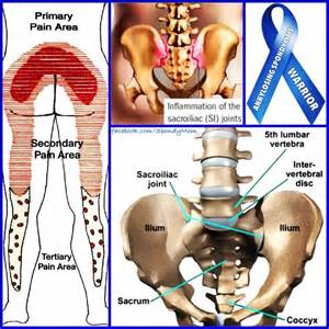 sacroiliac joint supplements picture 2