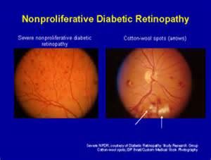 diabetic eye newsletters picture 9