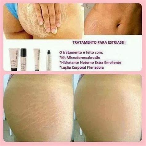 what makes a stretch mark leak picture 8