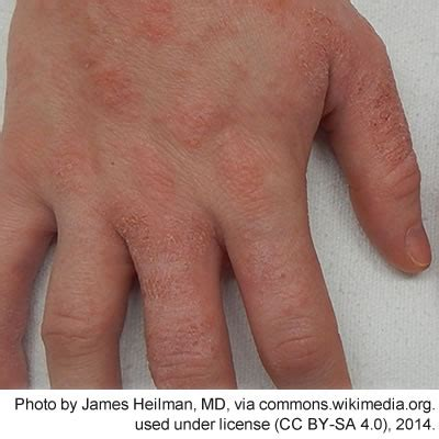 pictures of skin diseases on humans picture 5