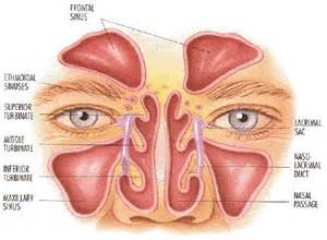sinus infection and dental/oral pain picture 6