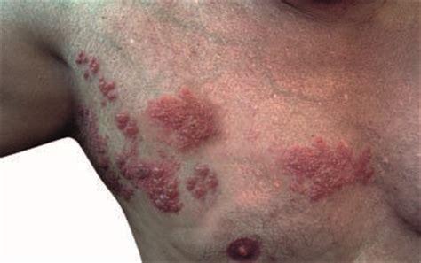 herpes sleeping disease picture 6