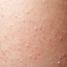 celiac and skin picture 10