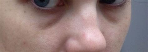 acne under eye picture 13