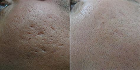laser treatment of acne scars picture 6