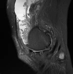 knee joint swelling picture 5