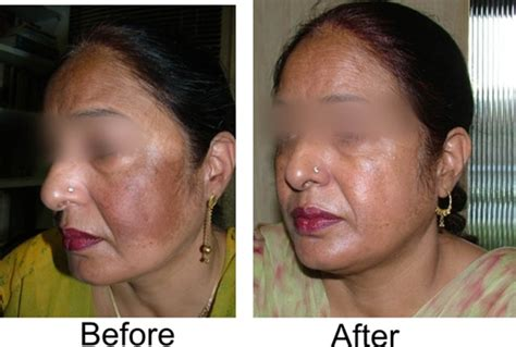 does using kojivit gel result in small boils on the face picture 5