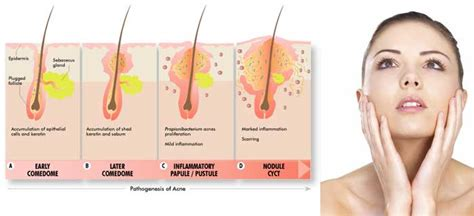 drugs that lower hormones for acne picture 3