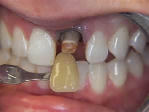 broken front teeth picture 13