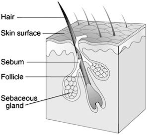 pictures of skin cancer for science fair project picture 4