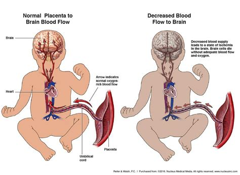 causes of decreased blood supply to placenta picture 2