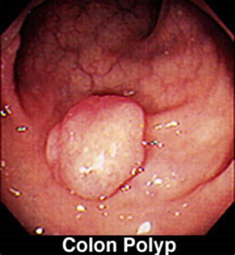 calcium and colon polyps picture 3
