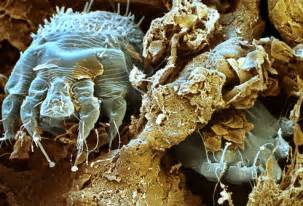 bedbugs burrow into skin picture 13