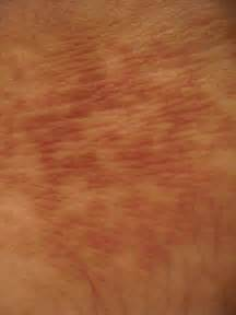 brown blothcy skin picture 10