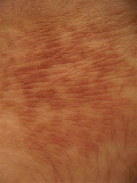 brown spots on skin picture 3