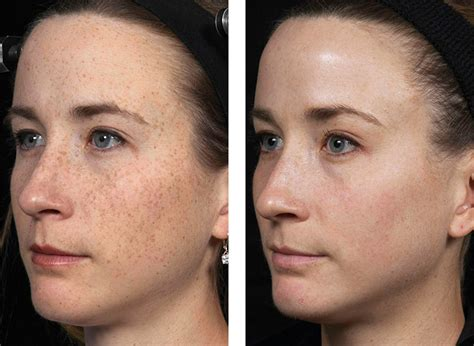 cost of co2 laser for acne scars picture 15