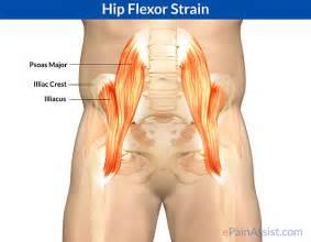 hip flexor injury symptoms picture 7
