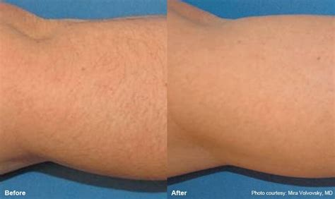 forearm hair removal picture 6