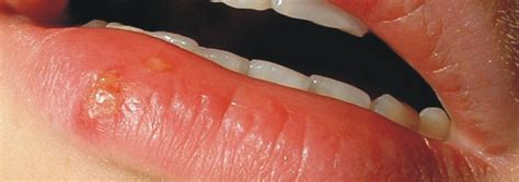 cold sores herpes picture 11