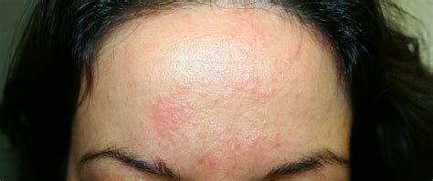 cause of hives on forehead picture 14