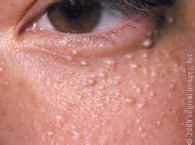 skin conditions of the face milia-cholesterol deposits picture 7