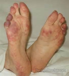alipunga treatment picture 2