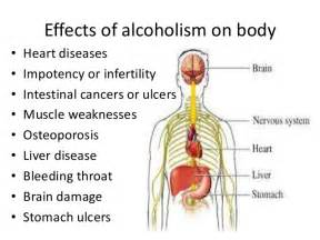 alchoholism and liver cirrhosis picture 3