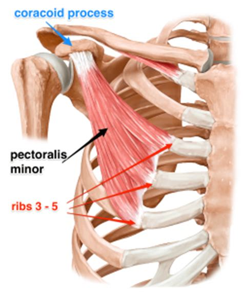 do torn attachments of the pectoralis muscle need picture 4