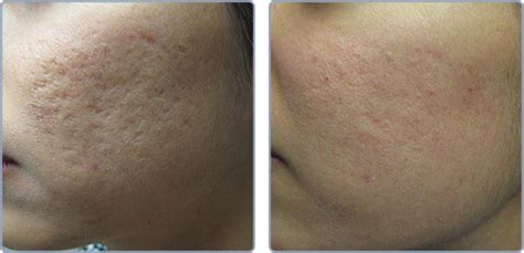 ipl laser results on acne marks picture 10