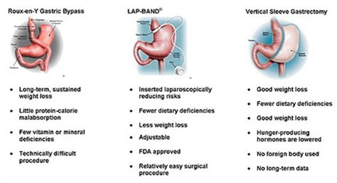 fat vanish weight loss system' picture 2