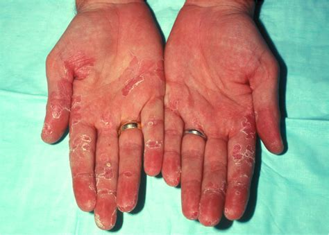 psoriasis of the liver picture 14