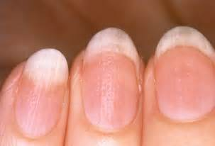 cause of white spots on skin picture 6