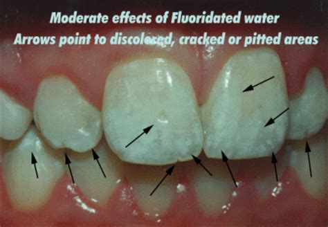 fluoride bad for teeth picture 8