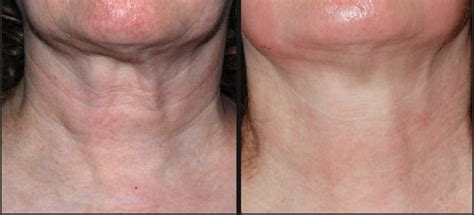an skin tightening laser nj picture 11