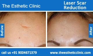 cost of co2 laser for acne scars picture 13