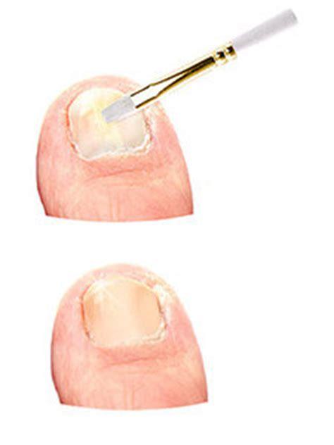 clear nails pro liquid toenail fungus solution picture 11