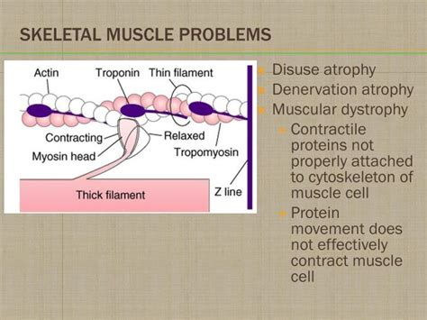 muscle problems picture 7