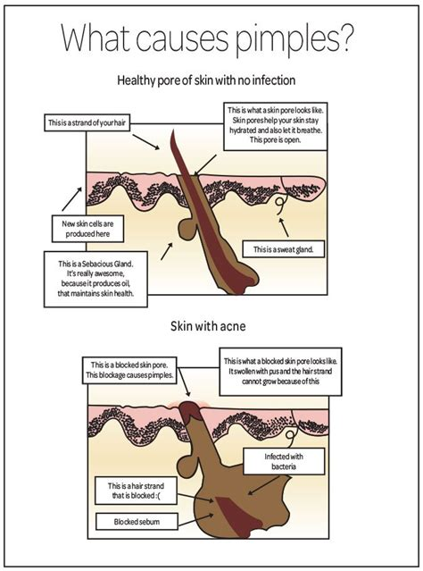 what causes acne picture 11