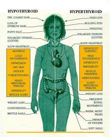 effects of hypothyroidism picture 1
