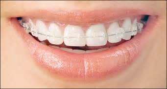 ftaltest teeth picture 1