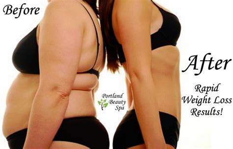 best spa in florida for weight loss picture 1