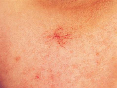 liver hemangiomas picture 5